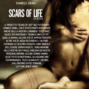 """La serie """"Scars of life"""" di Daniele Deriu a Torino"""