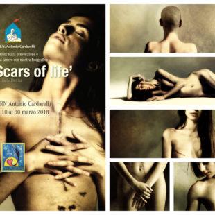 Scars of life al Cardarelli di Napoli – daniele deriu